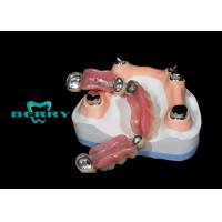 Quality Vitallium Material Telescope Crown Precision Attachment , Telescopic overdenture for sale