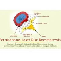 Wholesale Percutaneous Laser Disc Decompression PLDD For Lumbar Discogenic Radicular Pain from china suppliers