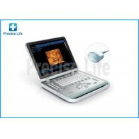 Wholesale Laptop Ultrasonic Scanner Medical Ultrasound Machine With 4D Image from china suppliers