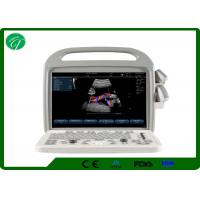 Wholesale Automatic Fetal Color Doppler Ultrasound , Digital Ultrasound Scanner Winder Angle from china suppliers
