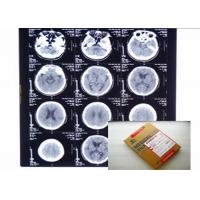 Wholesale PET Medical Digital X Ray Film Stable With Agfa / Fuji Thermal Printers from china suppliers