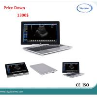 Quality Price Down notice Laptop ultrasound scanner for sale