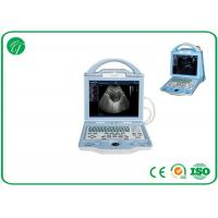 Wholesale Fully Digital type b Laptop Ultrasound Scanner with duable power supply mode from china suppliers