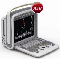 Wholesale Portable Ultrasound Machine With CW / PW Mode , Color Doppler Ultrasound Scanner from china suppliers