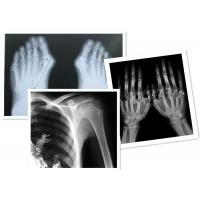 Wholesale Thermal Digital X Ray Film Fuji Medical For Radiography Examination from china suppliers
