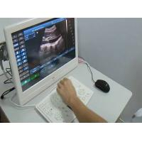 Wholesale Sonostar portable Veterinary LCD Ultrasound Scanner veterinary ultrasound machine from china suppliers