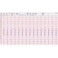 Wholesale Heart echo stress test 500Hz , stress ecg test PC and box connecte from china suppliers