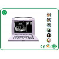 Wholesale Small Animal Vet Ultrasound Machine With 5 Inch TFT LCD Monitor 120mm-220mm Scan Depth from china suppliers