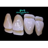 Buy cheap Comfortable Dental Composite Veneers , Teeth Composite Veneers from wholesalers