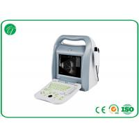Wholesale Portable Digital Ultrasound Scanner , Fetal Color Doppler Ultrasound In Pregnancy from china suppliers