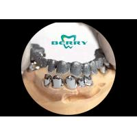 Quality Telescope Crowns Classic and long service life , Telescopic Dentures And Bridges for sale