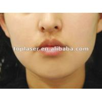 Buy cheap Erbium Glass Fractional Laser, 1550nm Fractional/Aging Spots/Wrinkles Removal from wholesalers