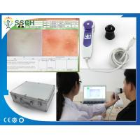 Wholesale Professional Beauty Equipment Skin Hair Analyzer For Dead Skin Diagnostic Equipment from china suppliers