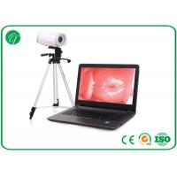Wholesale Portable Health Medical Equipment , Digital Electronic Colposcope Equipment from china suppliers