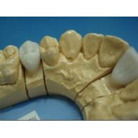 Dental E.max Crown