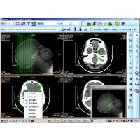 Wholesale Low Fog Medical Imaging Film Dry X-ray For AGFA / Fuji / Kodak Printer from china suppliers