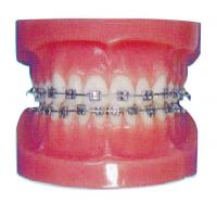 Wholesale Orthodontic Human Teeth Model for Hospitals And Dental Hospital Training from china suppliers
