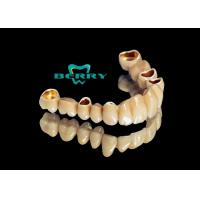 Wholesale Telescope Crowns Classic and long service life , Telescopic Dentures And Bridges from china suppliers