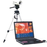 Quality Digital Electronic Colposcope for sale