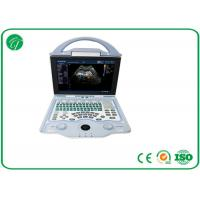 Wholesale Full Digital Doppler Ultrasound Machine Multi - Frequency Probe With A8 Embedded System from china suppliers