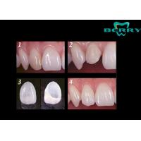 Wholesale Economic  Porcelain Dental Veneers  for thickness 0.5MM , Porcelain Veneer Teeth from china suppliers
