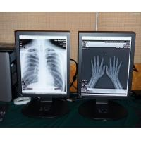 Wholesale medical high quality 2MP Color medical display from china suppliers