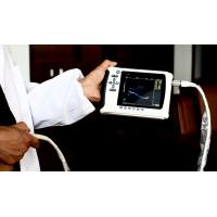 "Wholesale 7"" LCD Screen Compact Palm Ultrasound Scanner Portable Diagnostic Ultrasonic Equipment from china suppliers"
