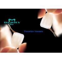Wholesale Commonest Porcelain Dental Veneers With Treatments Crowns from china suppliers