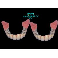 Quality Implantable Telescope Crown restoring  your perfect  mouth state for sale