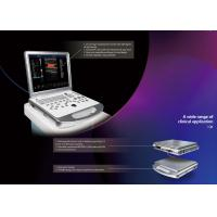 Wholesale CE / ISO Color Doppler Portable Ultrasound with Printer / UPS / Probes from china suppliers