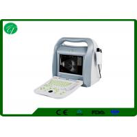 Wholesale ROSH 10.4' Ophthalmic A/B Ultrasound Scanner AM-ODU8 with imported probe/transducer from china suppliers