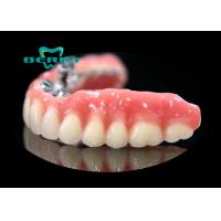 Wholesale Precision Attachment Telescopic overdenture Palladium-Silver from china suppliers