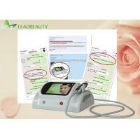 Wholesale Microneedle Facial Treatment 5MHZ RF Skin Tightening Machine / Scars Removal Beauty Equipment from china suppliers