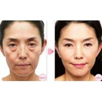 Wholesale 100%Pure Hyaluronic Acid Filler, Dermal Filler For Removing Wrinkle from china suppliers