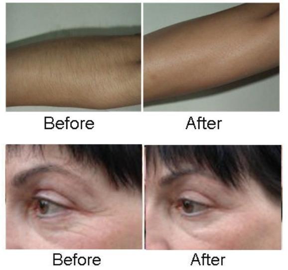 2015 OPT e light skin rejuvenation ipl rf beauty equipment