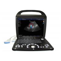 Wholesale Cardiac Equipment / Color Doppler Machine Ultrasound Scanner With 15 Inch Color Screen from china suppliers