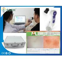 Wholesale Smart High Resolution USB Skin Scope Analyzer & Hair Analyser Machine Face Skin Care Products from china suppliers