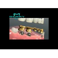 Wholesale Intensity  Restoration Captek Bridge Captek Naogold Dental  Crowns from china suppliers