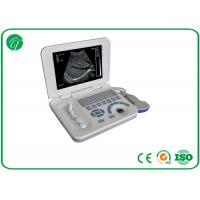 Wholesale Full Digital Hospital Medical Equipment For B Mode Laptop Ultrasound Scanner CE from china suppliers