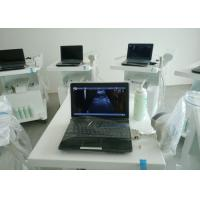 Wholesale Baby B/W Laptop Ultrasound Pregnancy Scanner 3.5MHZ Convex Probe Ultrasound Scanner from china suppliers