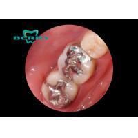 Wholesale White Gold Alloy Dental Inlays Distinguished Biocompatible Tough from china suppliers