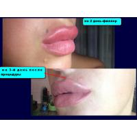China Cross Linked HA Dermal Fillers Gel Apply To Anti Wrinkle And Sexy Lip on sale