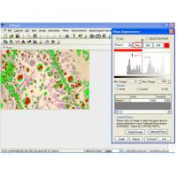 Wholesale Metallurgical Image Analysis Measuring Software With Edge Detection from china suppliers