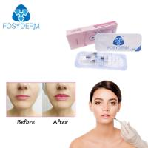 China Cross Linked Injection Gel Hyaluronic Acid Dermal Filler Anti Aging CE ISO on sale