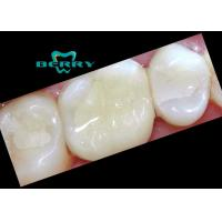 Wholesale Composite Tooth Veneers Dental Inlays small damage of tooth surface from china suppliers