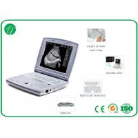 Wholesale Intelligent TGC Control B Mode Ultrasound Scanner , medical ultrasound machine in pregnancy from china suppliers