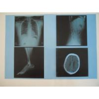 Wholesale KND-A Low Fog Medical Dry Imaging Film For X Ray Examination On AGFA 5300 / 5302 / 5500 from china suppliers