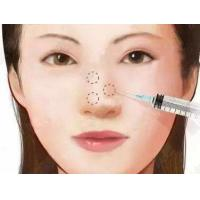 Wholesale Hyaluronic Acid Injection For nose surgery from china suppliers