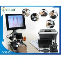 Wholesale Portable Video Microcirculation Microscope Nailfold Capillary with CE from china suppliers