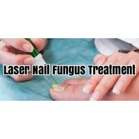 Wholesale Safe Laser Therapy Machine For Fungal Nail Infection , Toe Nail Fungus Laser Equipment from china suppliers